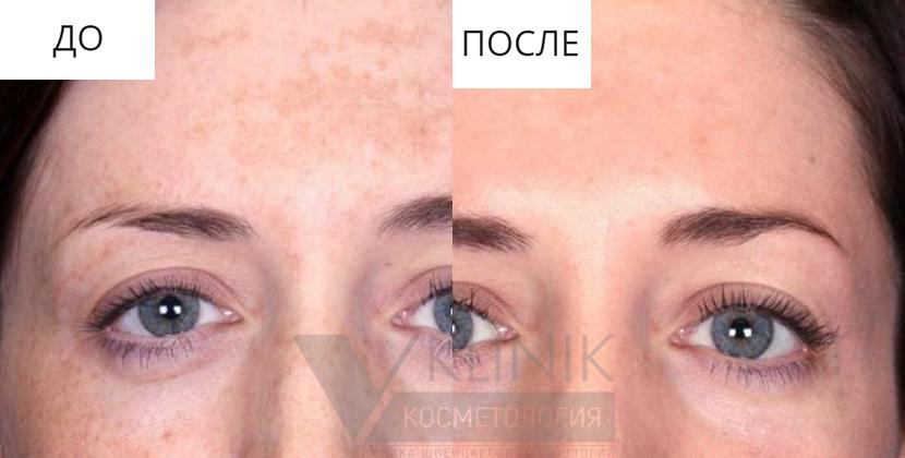 Желтый пилинг (ретиноловый)