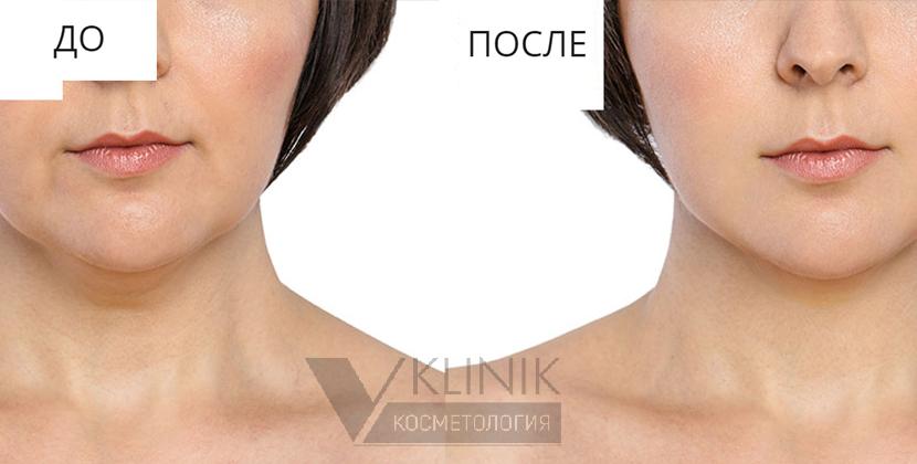 Дренажная мезотерапия лица